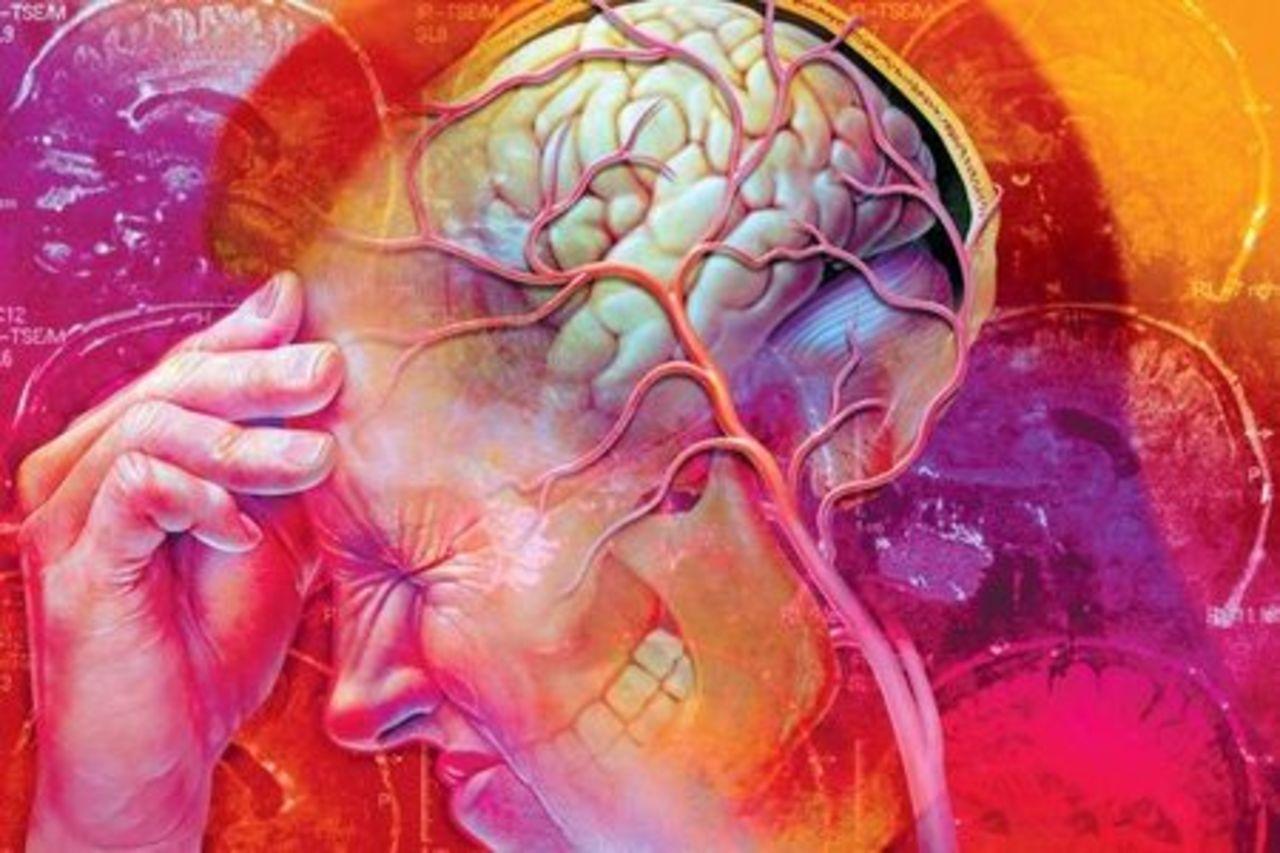 Практический подход к ведению больных с мигренью